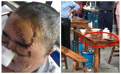 【怒】安徽一女子劝架时被砍 头部被缝106针